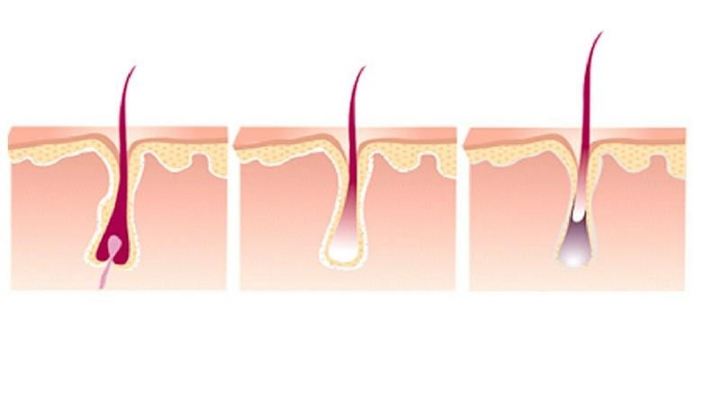 ¿Cómo funciona el ciclo de crecimiento del pelo?